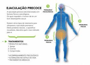 Ejaculação Precoce Tratamento Psicológico SP